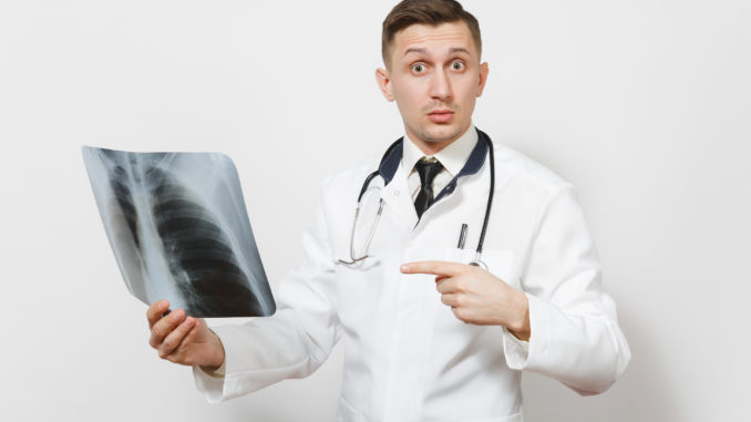 Perplexed focused doctor man with X-ray of lungs