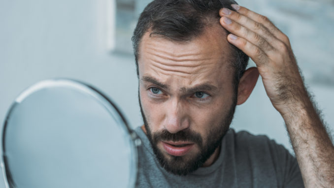 upset middle aged man with alopecia looking at mirror hair loss concept